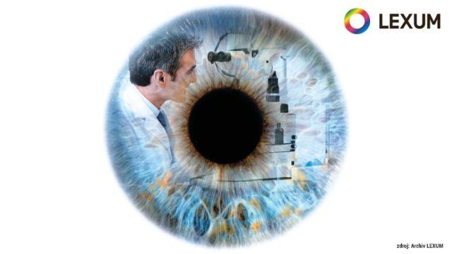 Na očních klinikách LEXUM neustále rozšiřujeme péči opacienty!
